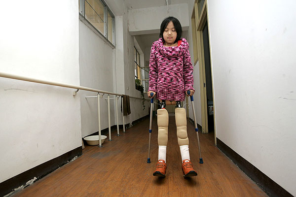 Qian now has a pair of proper prosthetic legs, but still says she likes to use the basketball from time to time as it is easier for her to get in and out of the pool with. (photo from http://www.weirdasianews.com)