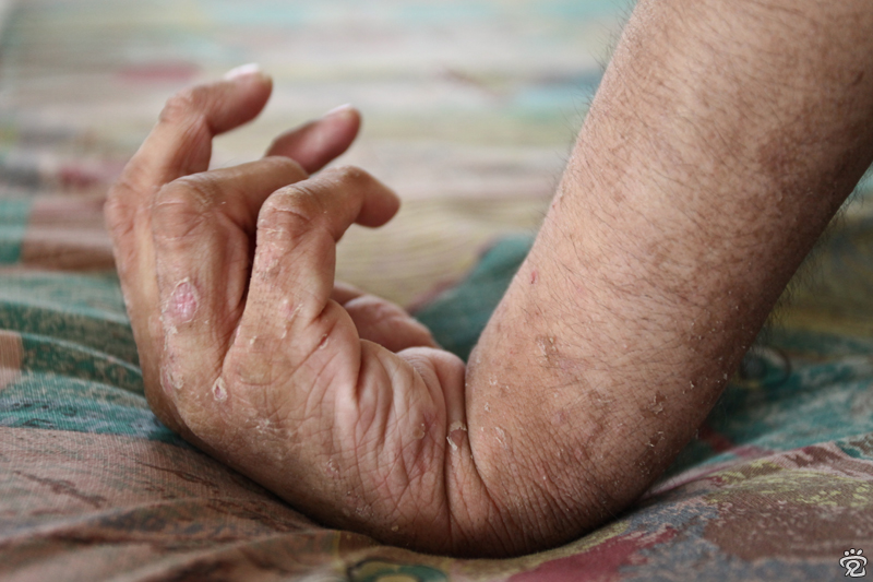 hand of a resident of the centre